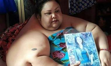 Kata Pakar, Begini Kronologi Obesitas Titi Wati