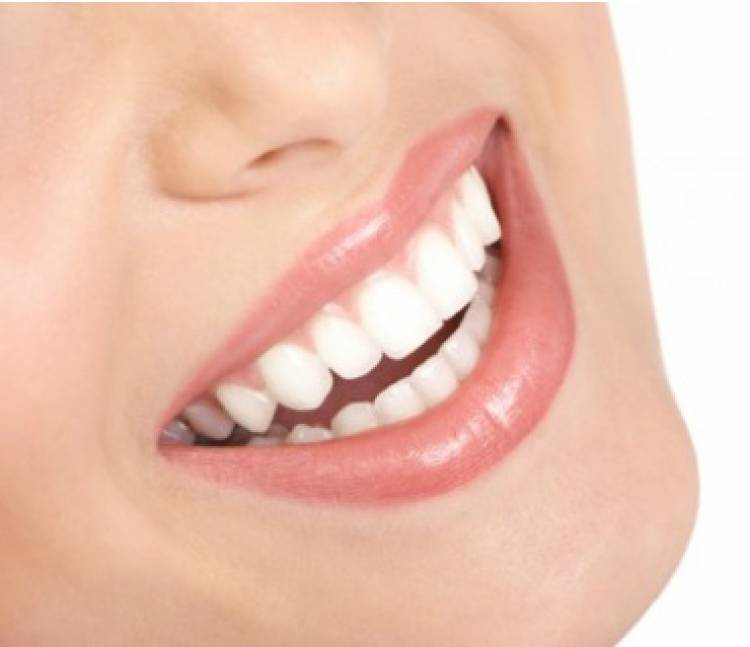 Veneer Gigi, Untuk Kesehatan atau Gaya Hidup?