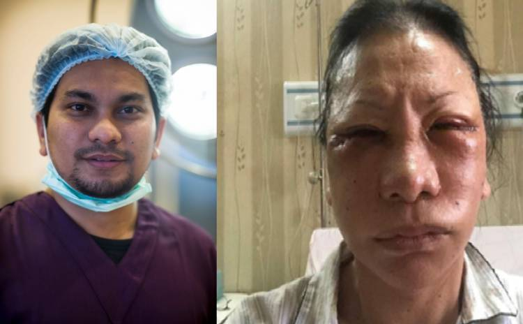Karena Bohong, Tompi Pasang Tarif Operasi Plastik ke Ratna Sarumpaet