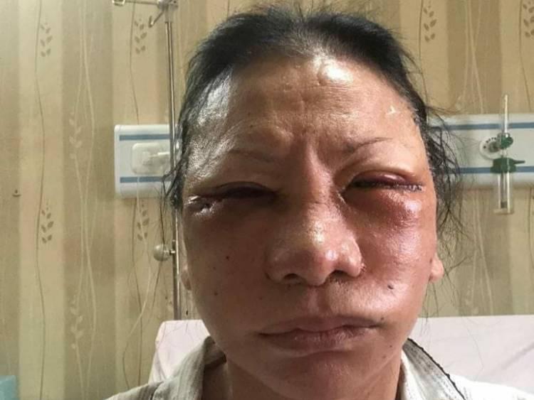 Apa Isi Rekam Medis Operasi Plastik Ratna Sarumpaet, Simak Penjelasan Polisi
