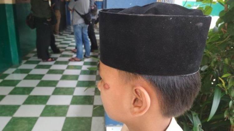 Tak Terima Kepala Anaknya Diadu, Pipit Laporkan Kepsek SMP Garut ke Polisi